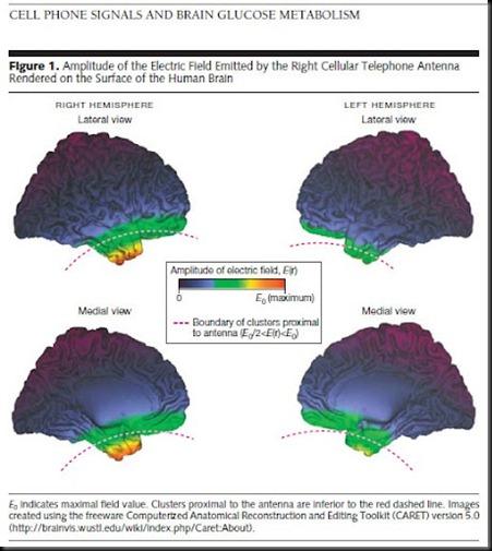 Efectos del telefono movil en el cerebro