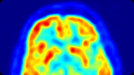Detectan-actividad-cerebro-embrionario-nacimiento_TINIMA20120504_0102_5